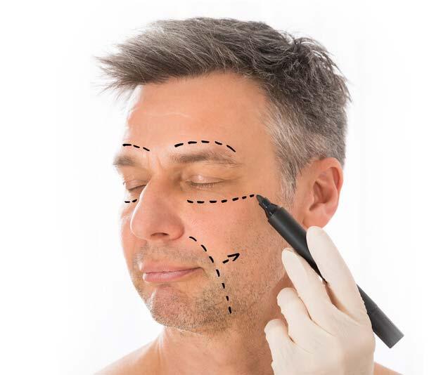 neck and facelift fairfax va