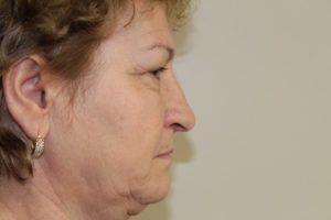 rhinoplasty fairfax 1