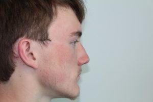 rhinoplasty fairfax 4