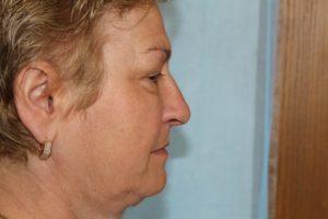 rhinoplasty fairfax 2