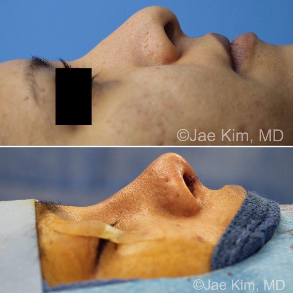 rhinoplasty fairfax va