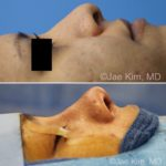 rhinoplasty fairfax va
