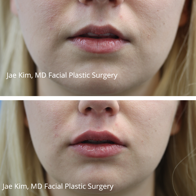 lip injections fairfax va