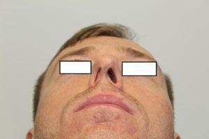 rhinoplasty fairfax before 22