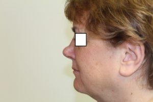rhinoplasty fairfax before 33