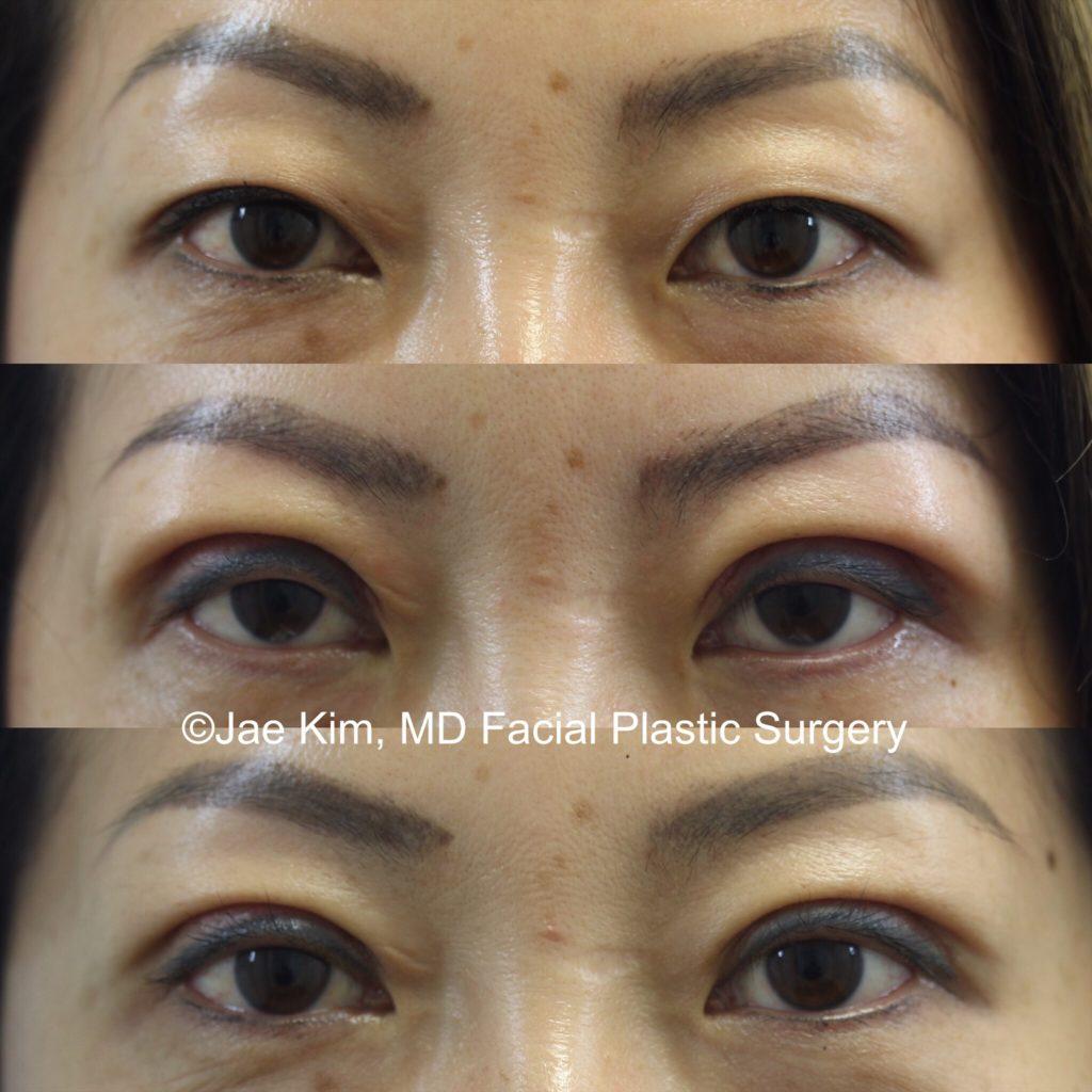 asian cosmetic surgery fairfax va