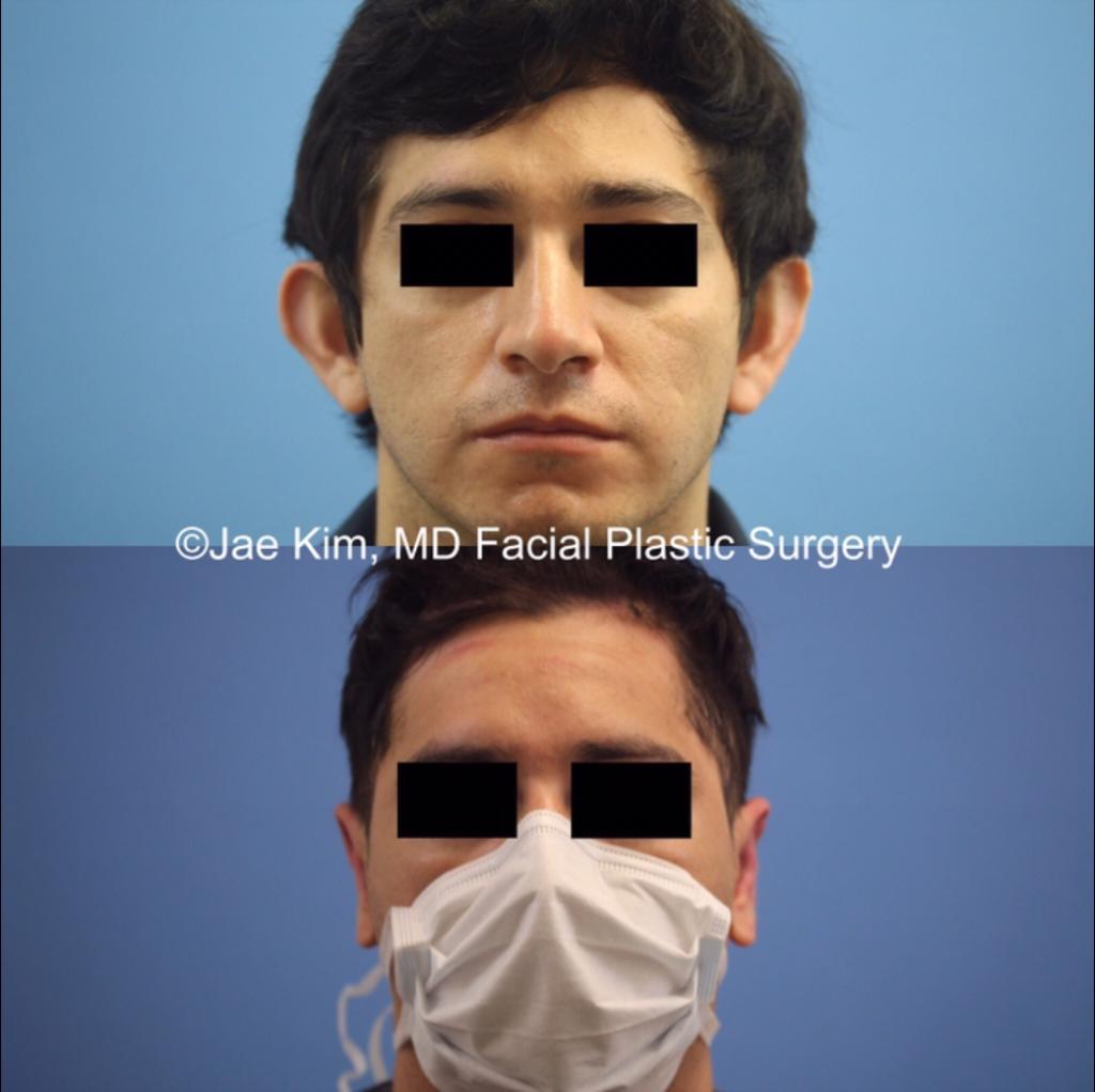 ear surgery otoplasty fairfax va