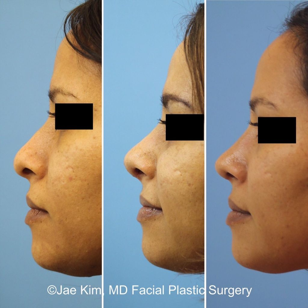 rhinoplasty nose job fairfax va