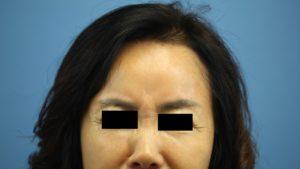Botox fairfax Virginia
