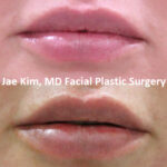 lip fillers Fairfax VA