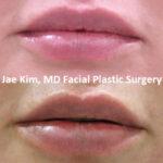 lip fillers Fairfax VA