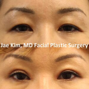 What to Expect at Your Asian Eyelid Consultation